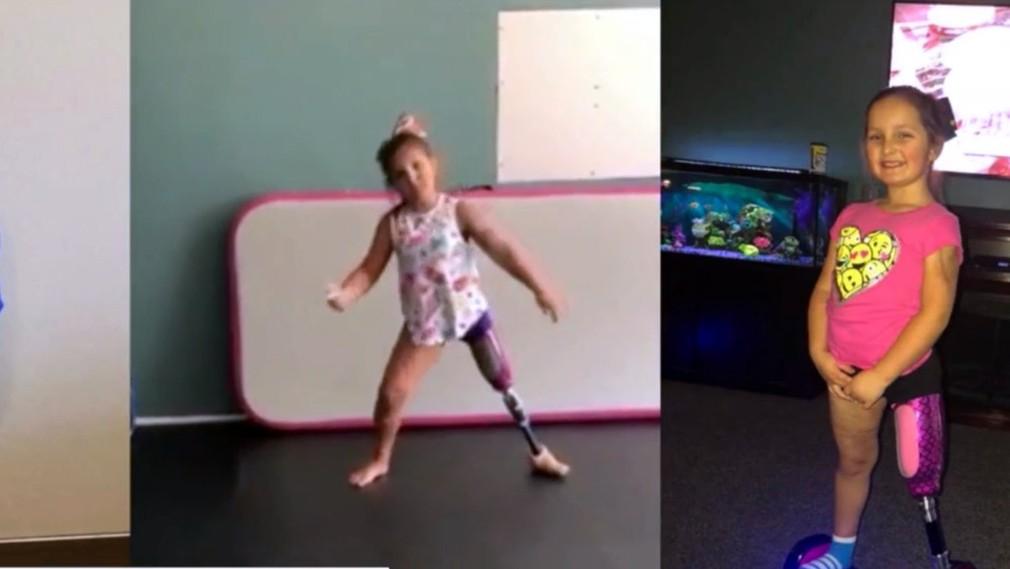 Malá tanečnica s protézou