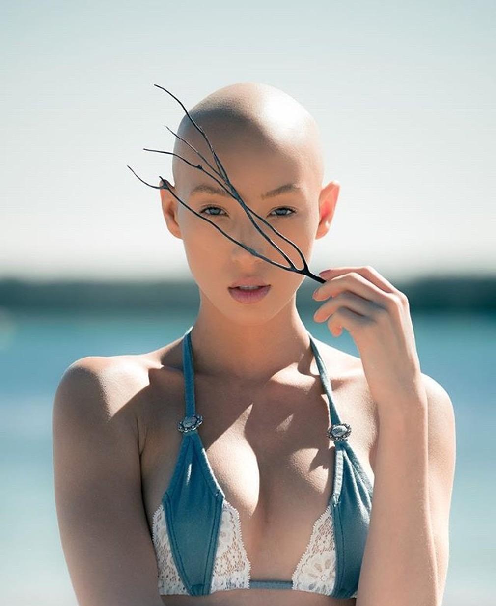 """<p><span id=""""result_box"""" class="""""""" lang=""""sk""""><span>Jeana trpí alopéciou, čo znamená, že jej nerastú vlasy. V minulosti nosila parochňu z obavy, že niekto uvidí jej holú hlavu. Účasť v slávnej šou</span> """"<span class="""""""">Next's Top Model"""" jej však dodala odv"""