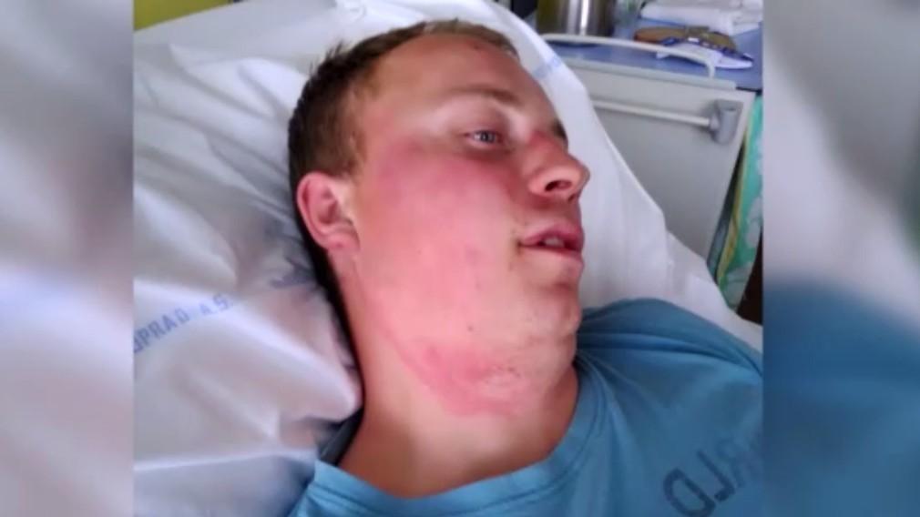 Pre kolíziu dvoch traktorov skončil mladý muž v nemocnici. Dobiť ho mal druhý šofér