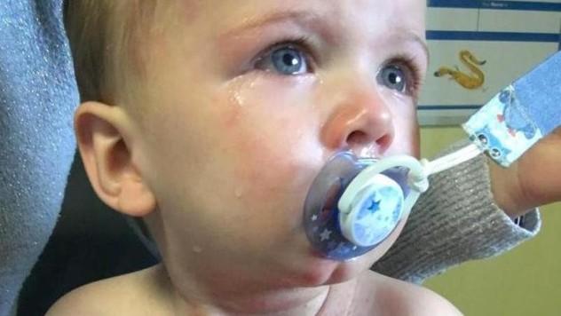 b8312e87b Matka zverejnila varovné fotky svojho syna: Pozor, toto sa môže stať aj vám