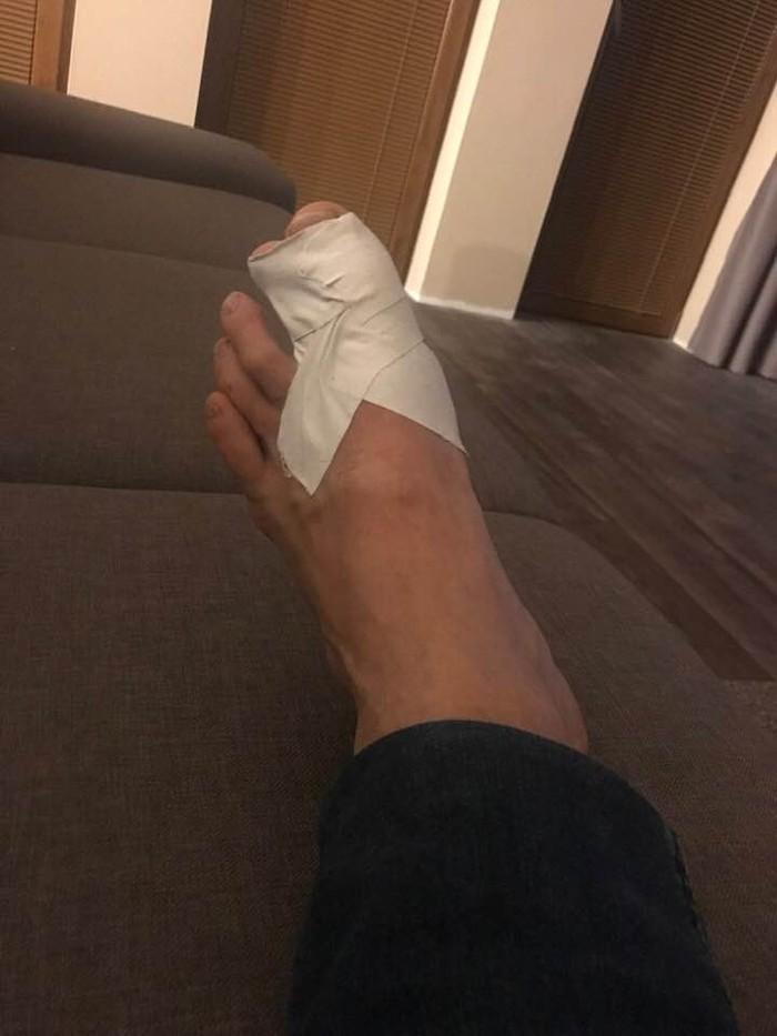 Vlado Voštinár skončil so zlomeným palcom na nohe