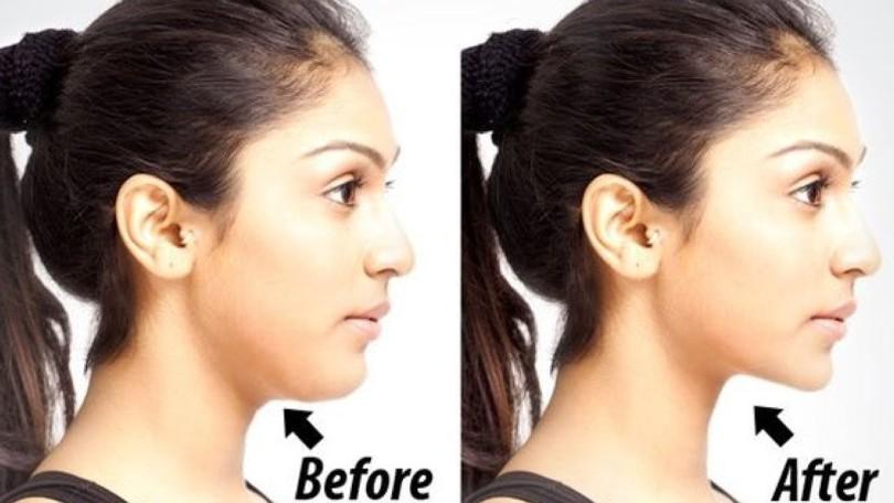 Výsledok vyhľadávania obrázkov pre dopyt dvojita brada a cviky