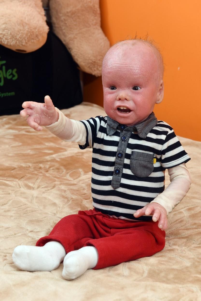 Chlapček s chorobou harlekýn