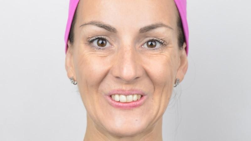 Jednotlivé cvičenia vyzerajú dosť vtipne,no fungujú! Zuzana má 38 rokov a vyformované svalstvo na tvári a pružnú, zdravo vyzerajúcu pleť.