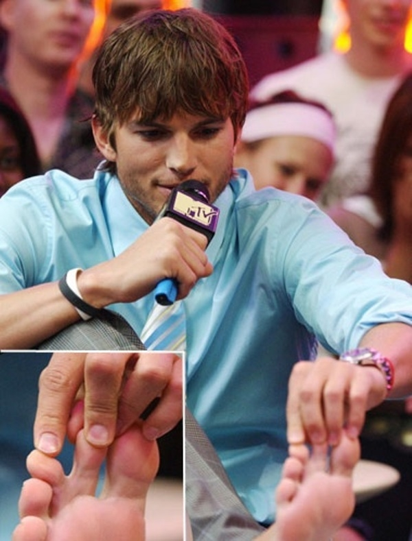 Fešák Ashton Kutcher ma dva zrastené prsty na nohe